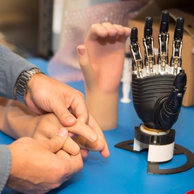 Ortopedi - handprotes