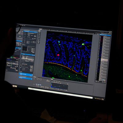 Cancer - Gunnar Hansson - Konfokalmikroskop